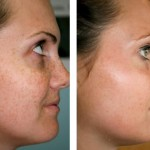 Experience With Skin Brightening Treatment ….