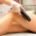 Laser Hair Removal in India: Experience & Review